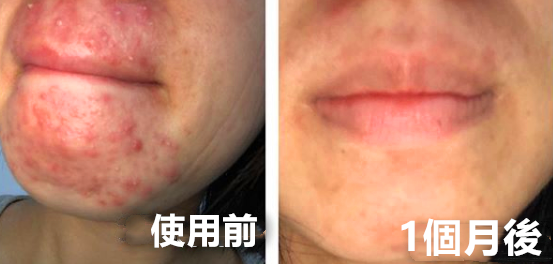 http://beauty-skin.tw/wp-content/uploads/2020/06/592dc8db1d115f7ab0d95230e64a9791.png