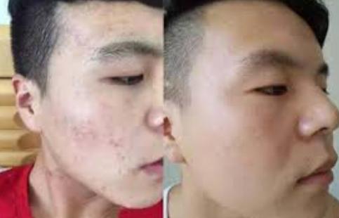 http://beauty-skin.tw/wp-content/uploads/2020/06/b2b7337efb233b2d6d6ac125b2482fbd.png
